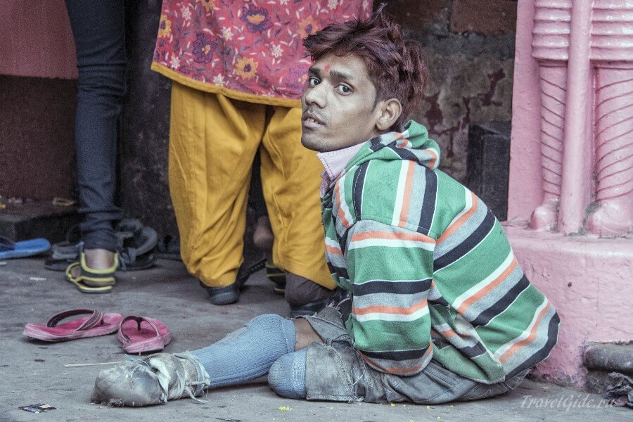 Молодой человек с дефектом развития