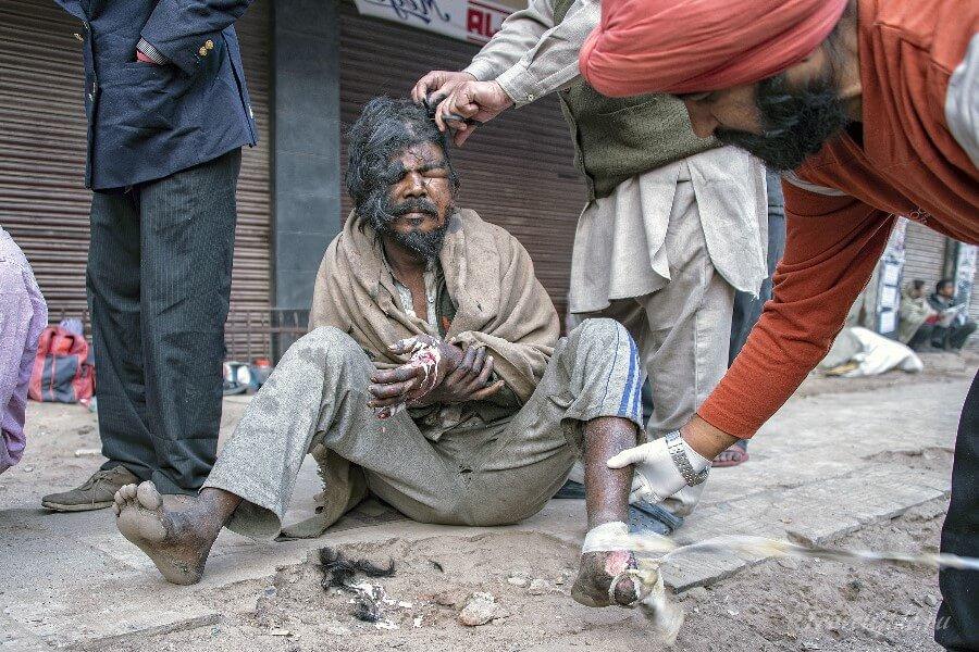 Оказание помощи бездомному в Индии
